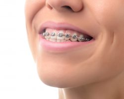 Teeth with dental braces.  Orthodontic Treatment.  Dental care Concept.